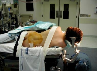 Patient positioned for lumbar drain insertion befo
