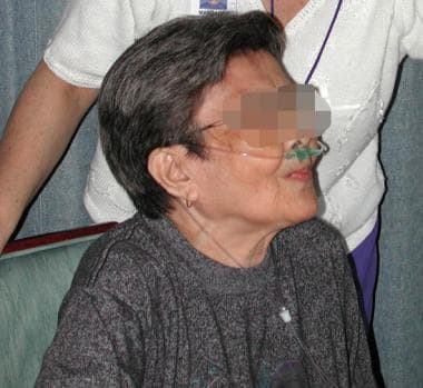 Pursed lip breathing is taught to patients with se
