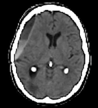 Late subacute-to-chronic subdural hematoma with a