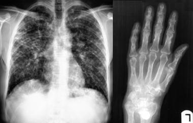 Sarcoidosis, thoracic. Posteroanterior chest radio
