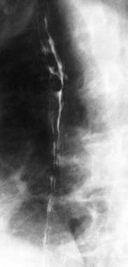Downhill esophageal varices on barium swallow exam