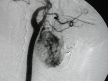 Angiogram in a patient who had a biopsy-proven ren