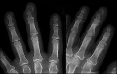 Crush fracture of the terminal phalanx of the midd
