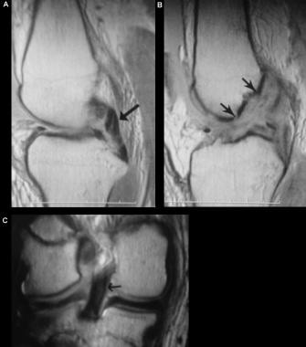 Combined anterior and posterior cruciate ligament