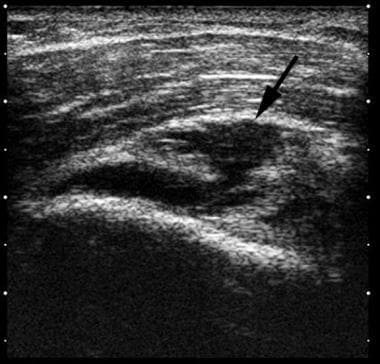 Shoulder, rotator cuff injury (ultrasonography). L