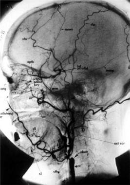 Lateral common carotid angiography demonstrates co