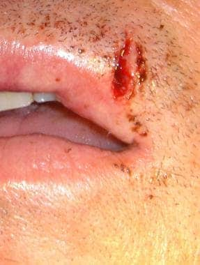Lip laceration involving the upper vermilion borde