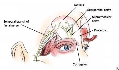 Complications of facelift surgery. Course of the f