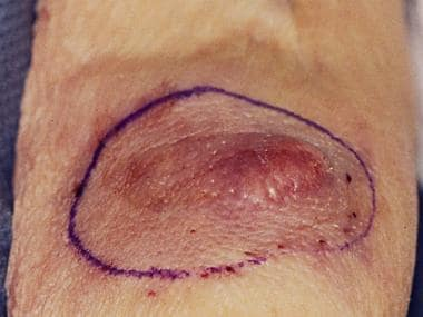 Large, violaceous nodule of a Merkel cell carcinom