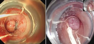 Endoscopic view of post-banding of the internal he