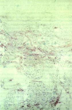 Orcein stain of elastic fibers shows the histopath