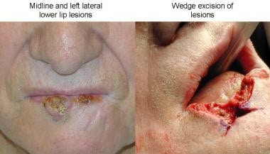 Left: A patient with midline and left lateral lesi