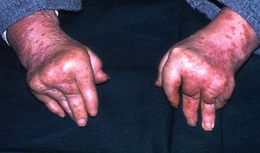 Arthritis mutilans, a typically psoriatic pattern