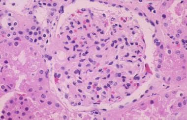 Light microscopy of a glomerulus from a patient wi