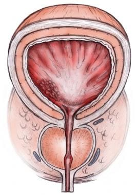 Normal prostate anatomy. The prostate is located a