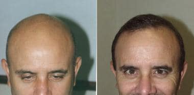 Case 2. Views before and after 3500 follicular-uni