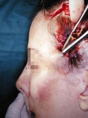 When an endoscopic forehead lift is done in conjun