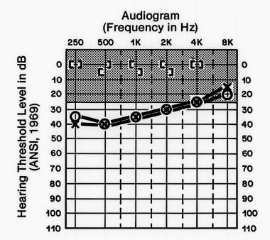 A typical audiogram demonstrating bilateral conduc
