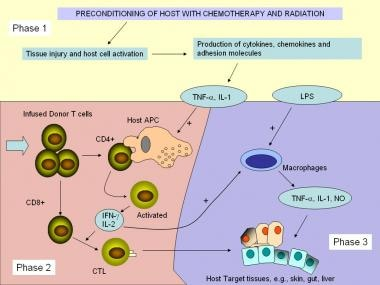 Pathophysiological pathways and mechanisms of acut