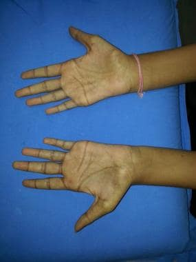 Wasting of small muscles of the hands in a patient