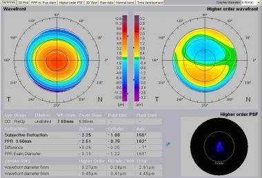 Zywave total and higher order wavefront (WF) map.