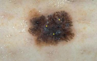 Microinvasive melanoma with pseudopods at the peri