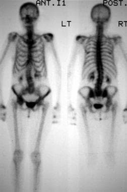 Total skeleton technetium-99m (99mTc) nuclear medi