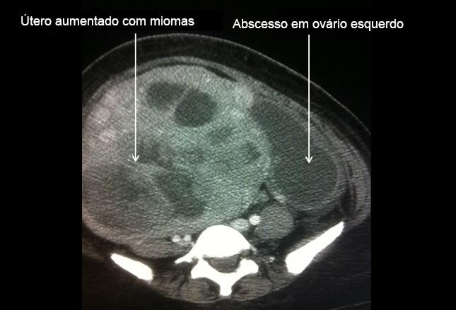 Corpo lúteo em ovário esquerdo