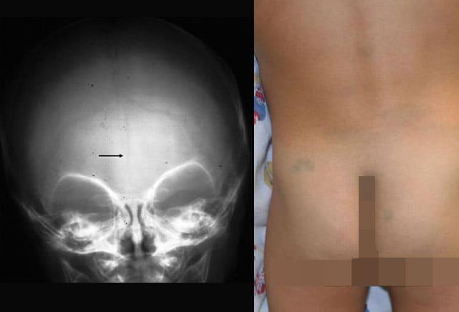 Da criança perna vascular na malformação