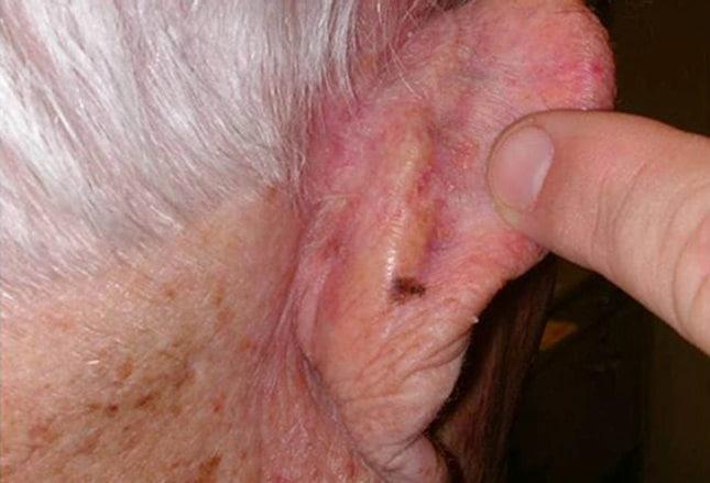 o carcinoma basocelular é benigno ou maligno