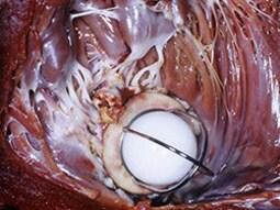 Teste: principais aspectos da endocardite infecciosa