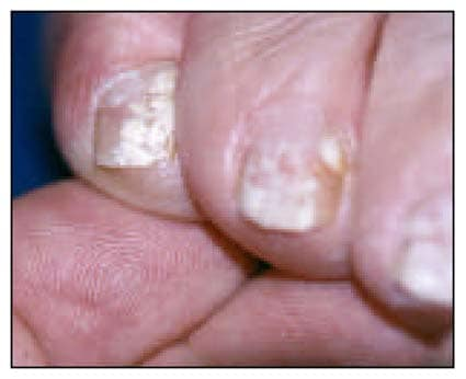 Progression And Recurrence Of Onychomycosis