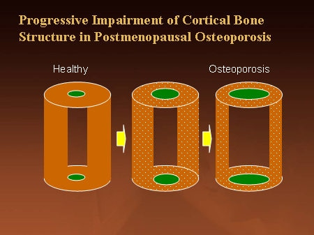a discussion of the impact of osteoporosis on the skeletal structure Effects of osteoporosis on posture  if you have osteoporosis then it means your bones have lost density or mass and the structure of your bone tissue is abnormal .