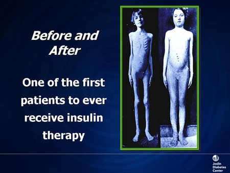 diabetes before insulin was discovered