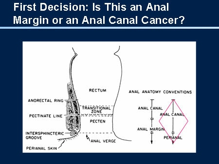 canal anal Carcinoma of