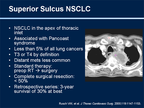 Stage 4 Lung Cancer >> NCCN Clinical Practice Guidelines in Oncology Symposium ...