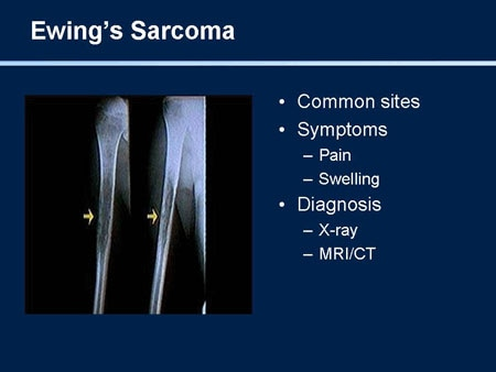 Stay Connected: Update on the Management of Sarcoma ...