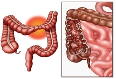 Irritable Bowel Syndrome and Functional Dyspepsia