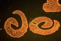 a pinworm klinikai irányelve