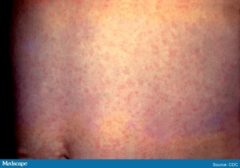 Never Seen Measles? 5 Things to Know