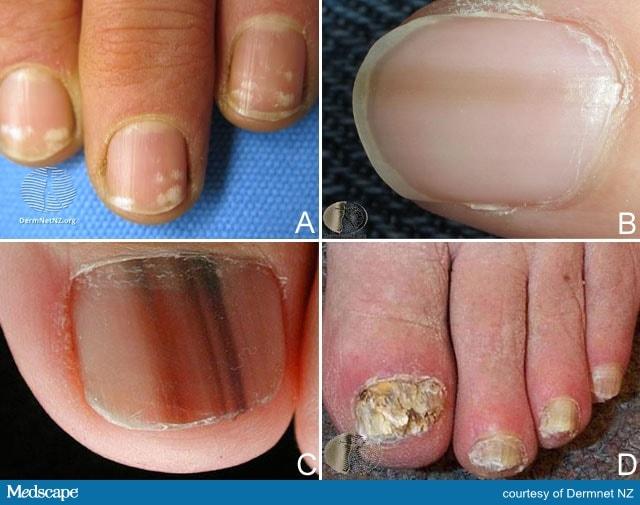 Nailing Nail Pathology: Primary Care Case Challenge