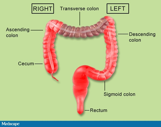 Left vs Right Difference in CRC: Now Practice Changing?