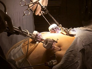 Bariatric Surgery Least Favoured Route to T2D Remission