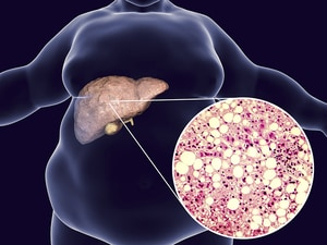 Multiple Drugs Advance for Fatty Liver Disease