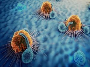 One in Five Cancer Tumors Grow Before Shrinking: Nivolumab