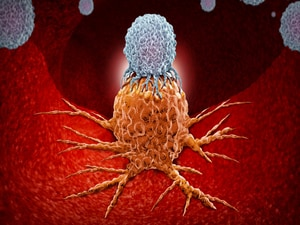 CAR T Cells: 'Validation That They Keep Living and Keep Working'