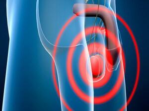 Paradigm Shift in Treatment of Testicular Seminoma?
