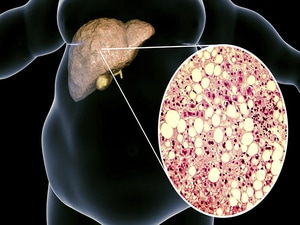 First Drug for Fatty Liver Disease Advances