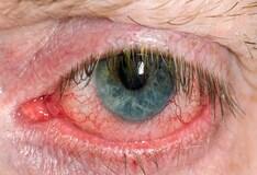 Xanthelasma: Background, Pathophysiology, Epidemiology