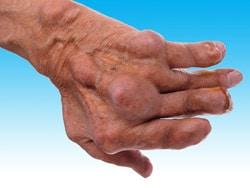 inflamația articulară cu ureaplasma